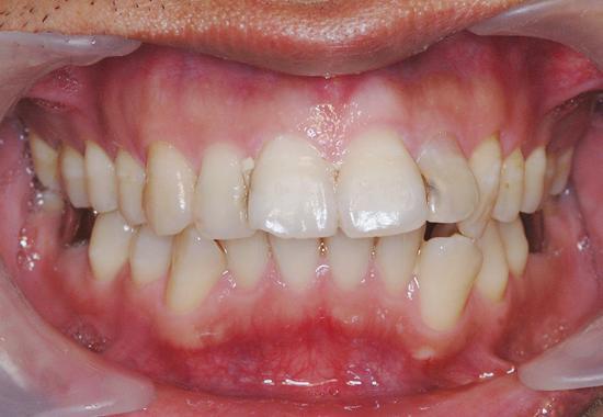 齒顎矯正案例一
