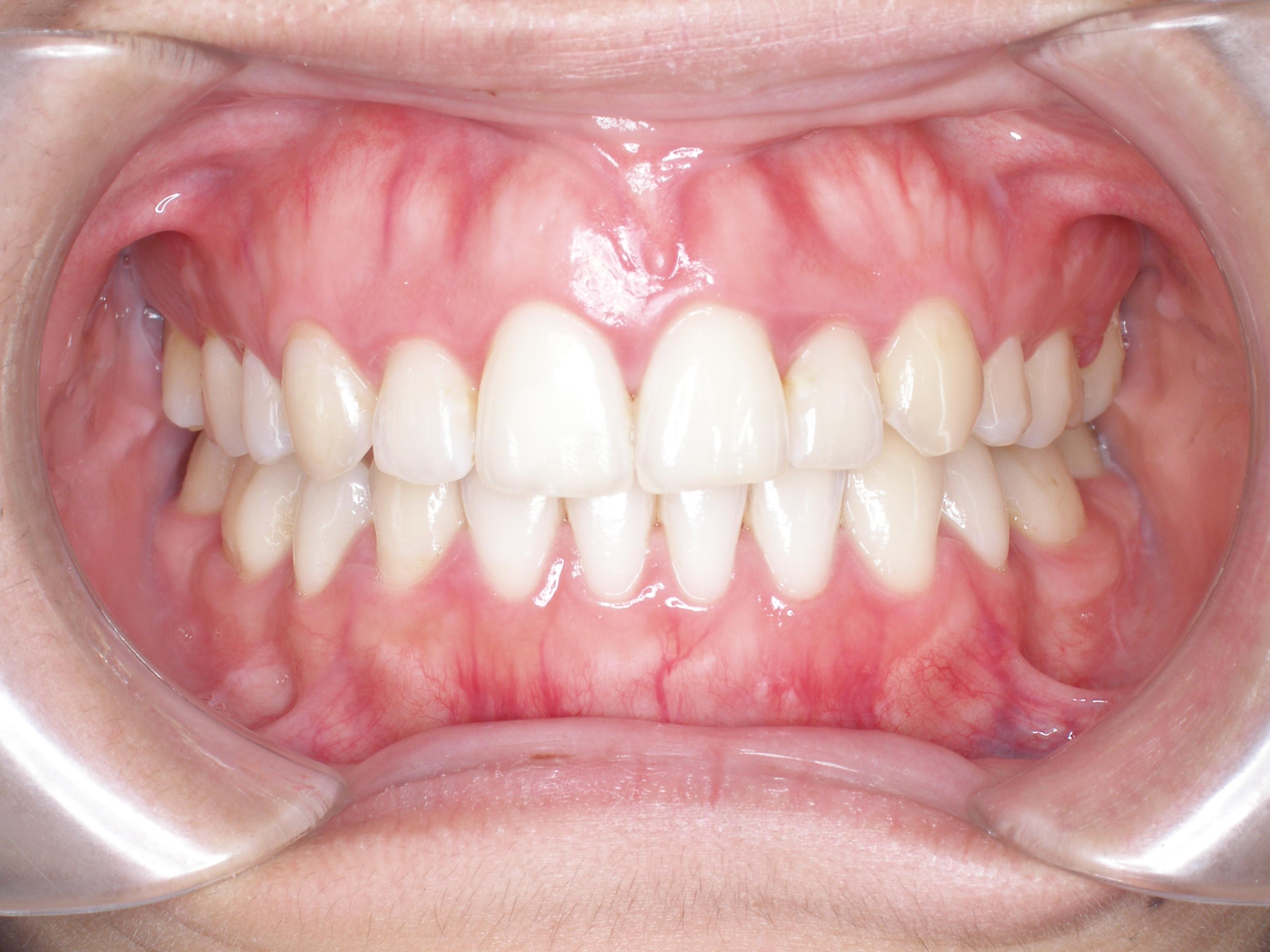 齒顎矯正案例二