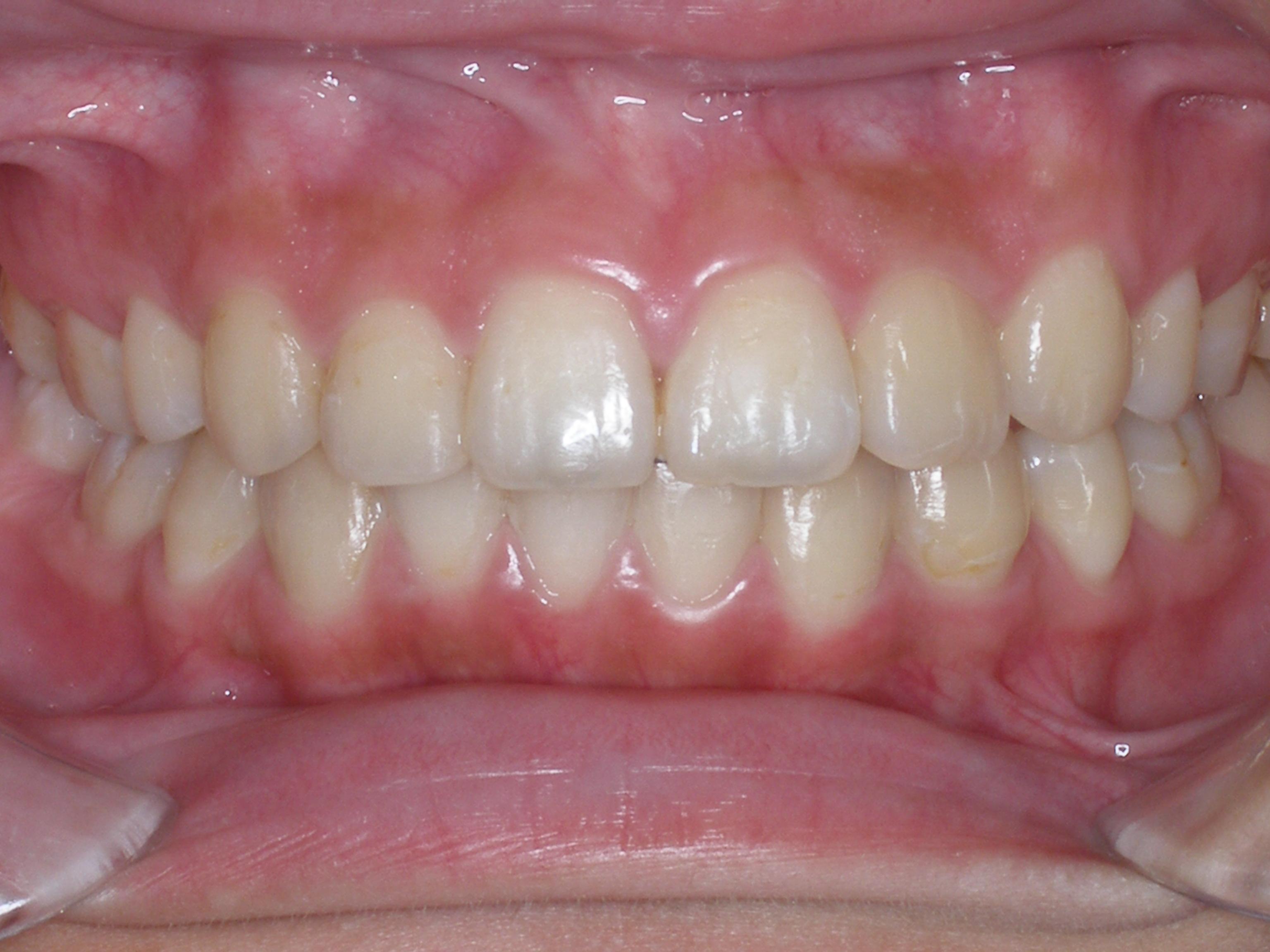 齒顎矯正案例四