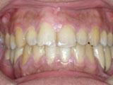 齒顎矯正案例五