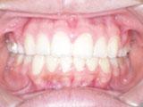 齒顎矯正案例六