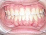 齒顎矯正案例七