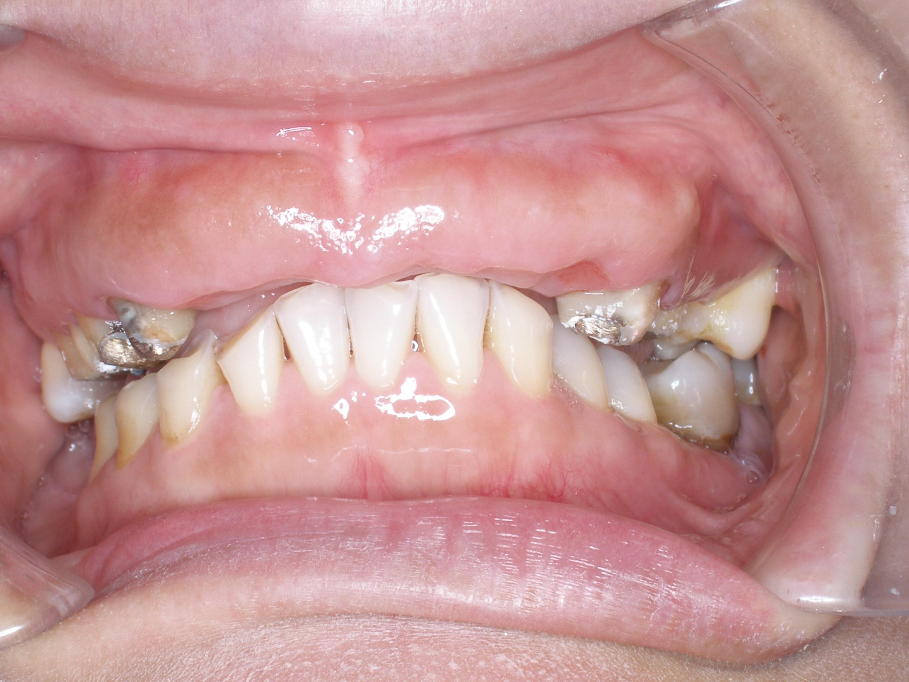家庭牙科案例一
