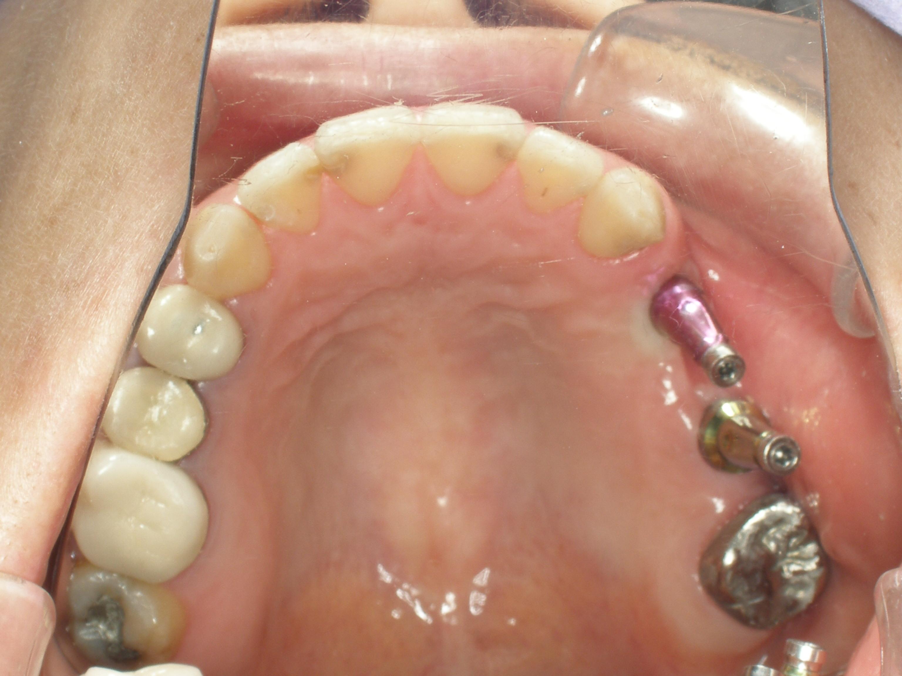 植牙案例一