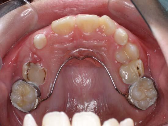 兒童牙科案例四